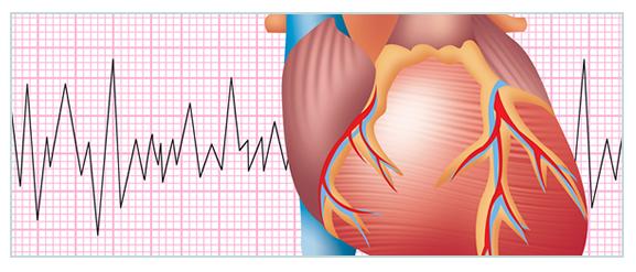 La vacuna contra la gripe disminuye eventos cardiovasculares graves en pacientes con un síndrome coronario agudo reciente