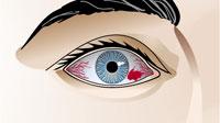 """""""Derrames"""" en el ojo"""