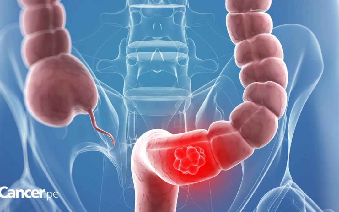 Las hemorroides y el cáncer de recto son parecidas