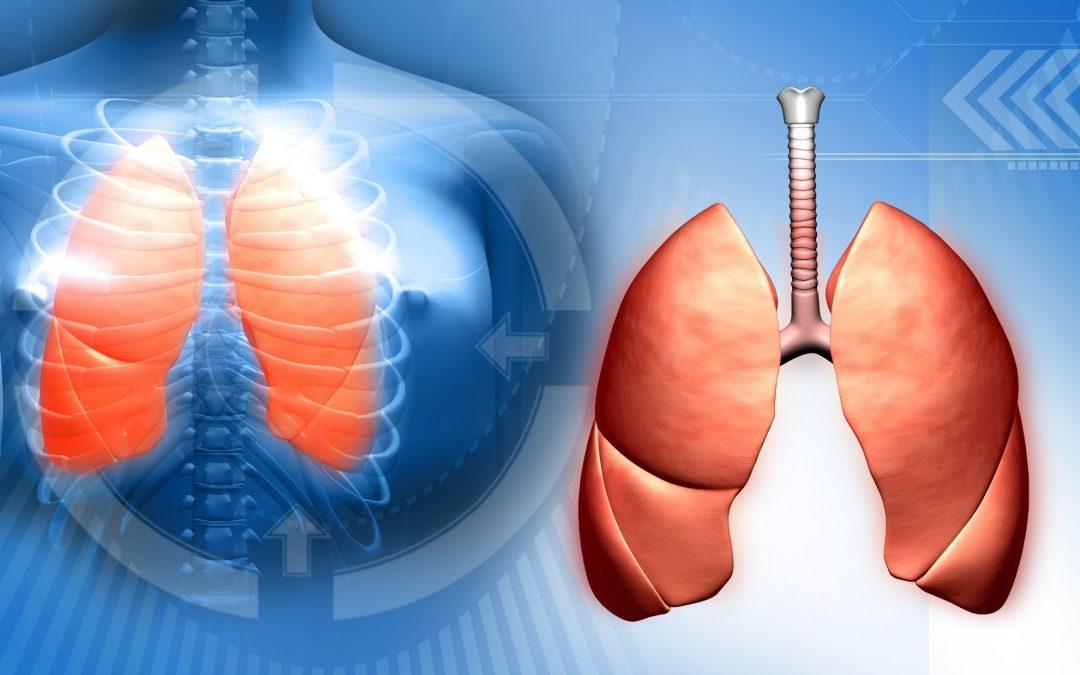 Neumonia o pulmonia