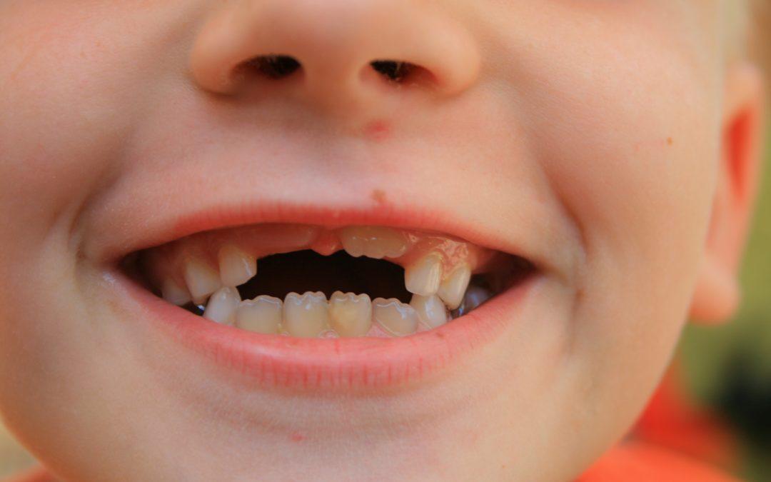 La caída de los primeros dientes