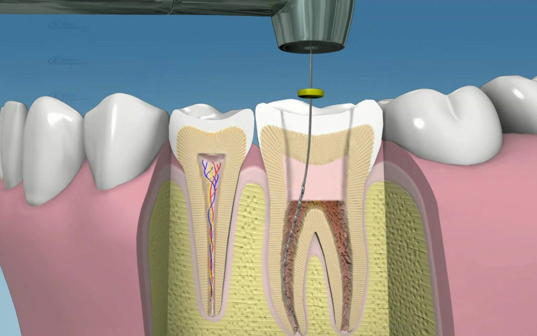 endodoncia en cancun