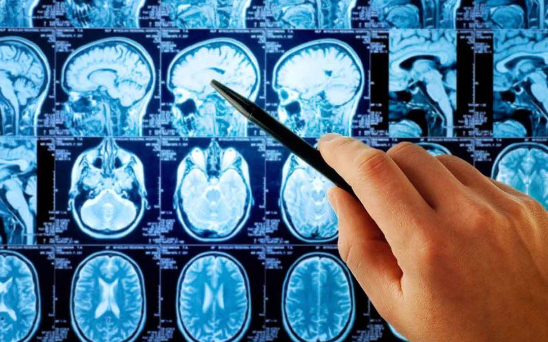 ¿Qué es un neurólogo?