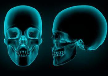 Problemas que afectan la mandíbula.