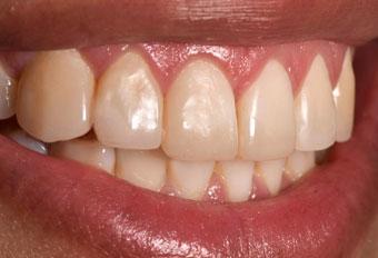 ¿Cuánto tiempo dura una resina dental?