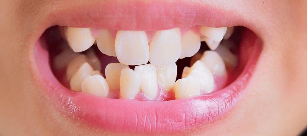 Alineamiento anormal de los dientes