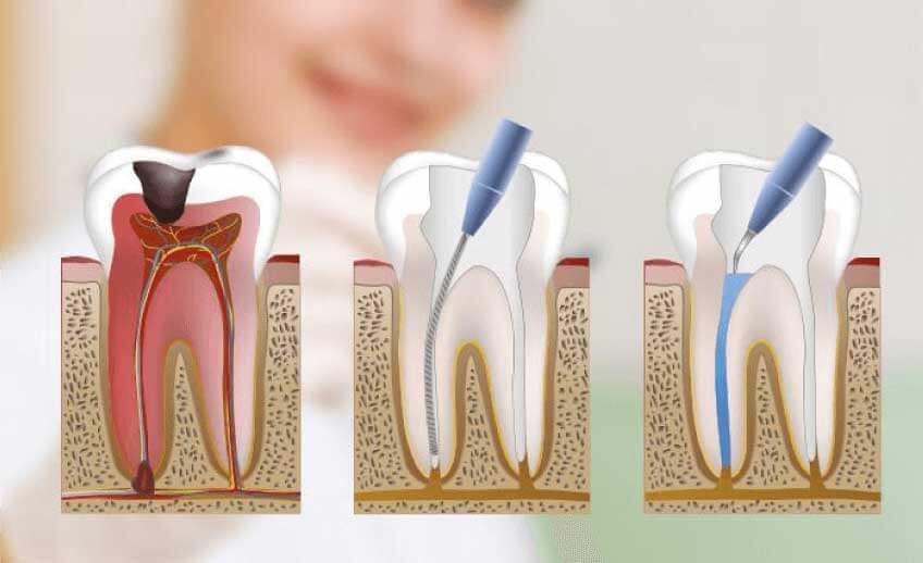 ¿Por qué se hace una endodoncia?